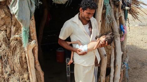 Im Jemen hat die Dystopie ihren Höhepunkt erreicht